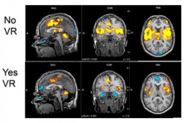 области в мозге слабее возбуждаются от боли, если пациент погружён в виртуальную реальность