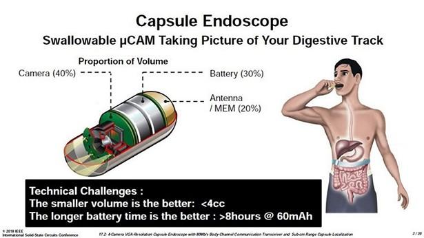 capsule endoskop