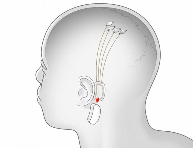 Neuralink contacts brain